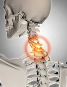 3D render of a skeleton with neck highlighted in pain